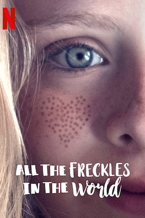 All the Freckles in the World